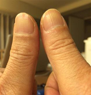親指を鍛えられる